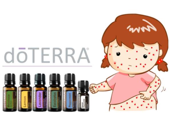 Alivia la varicela infantil con 6 aceites esenciales dōTERRA®